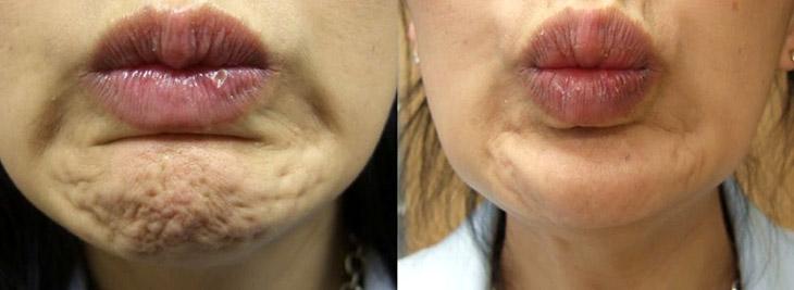 Putjes in kin Botox behandeling via Amstelzijde Kliniek