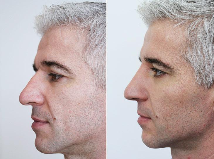 laser facelift ervaringen