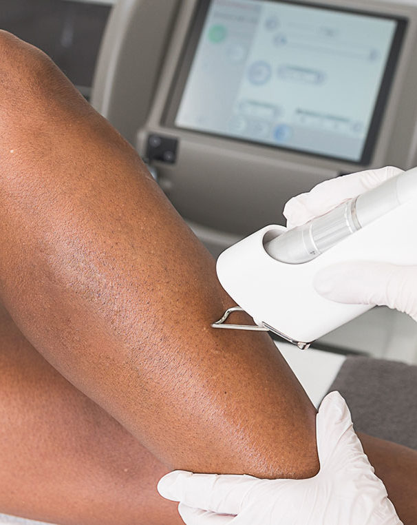 donkere-huid-haargroei-laserbehandeling-amstelzijde-kliniek