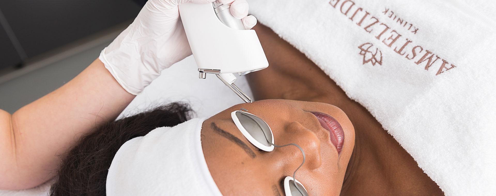 Donkere huide laserbehandeling