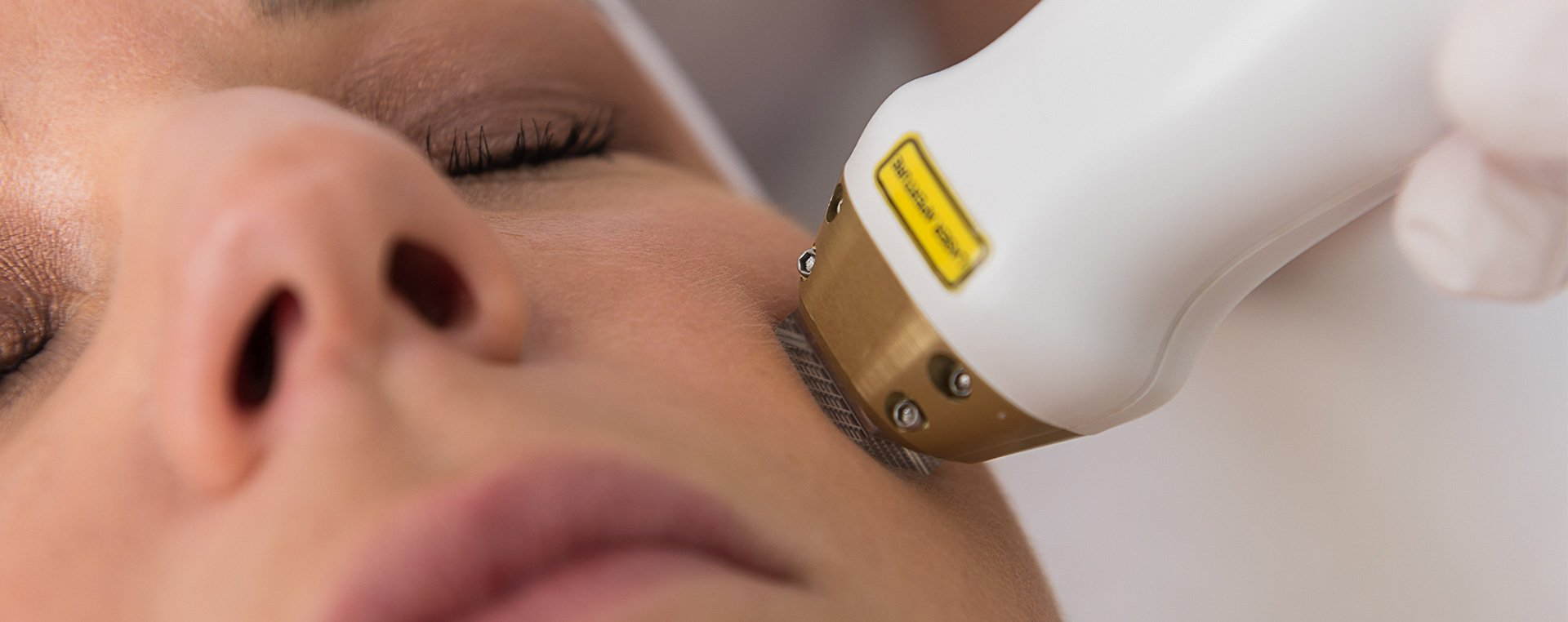 Acne laser gezichtsbehandeling