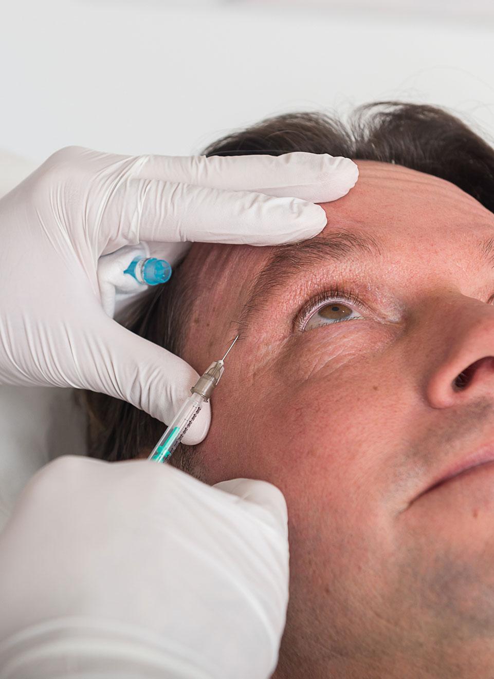 botoxbehandeling-mannen-amstelzijde-kliniek
